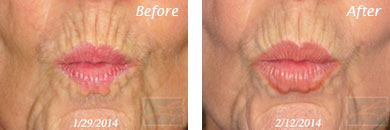 Botox - Before after gallery image 3