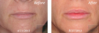 Lips - Before and After Case 2