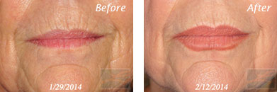 Botox - Before after gallery image 2