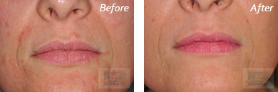 Lips - Before and After Case 21
