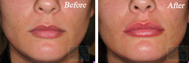 Lips - Before and After Case 30