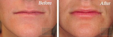 Lips - Before and After Case 32
