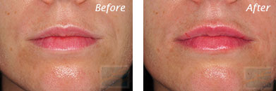Lips - Before and After Case 4