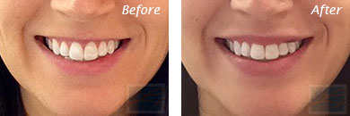 Lips - Before and After Case 5