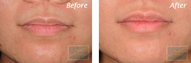 Lips - Before and After Case 7