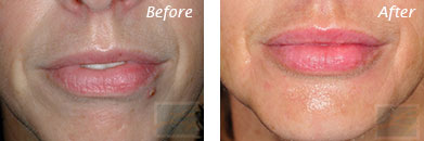 Lips - Before and After Case 8