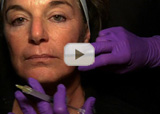 Injecting Restylane Video