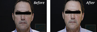 Men - Before and After Case 1