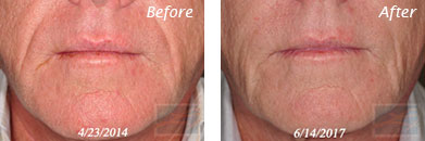 Juvederm voluma - Before after gallery image 1