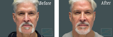 Men - Before and After Case 11