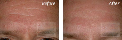 Men - Before and After Case 4