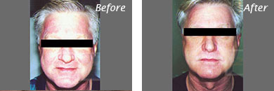 Men - Before and After Case 7