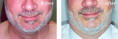 Men - Before and After Case 8