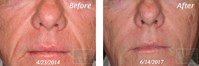 Juvederm voluma - Before after gallery image 2