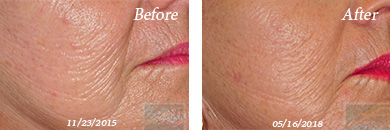 MicroNeedling - Before and After New Orleans, LA