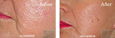 MicroNeedling - Before and After Case 1
