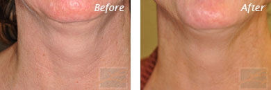Neck, Abdomen & Chest - Before and After Case 9