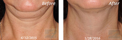Neck, Abdomen & Chest - Before and After Case 18