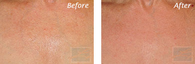 Neck, Abdomen & Chest - Before and After Case 25