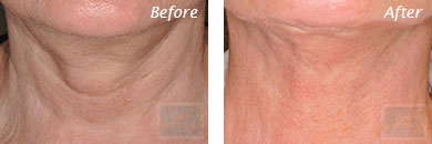 Neck, Abdomen & Chest - Before and After Case 26