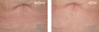 Neck, Abdomen & Chest - Before and After Case 27