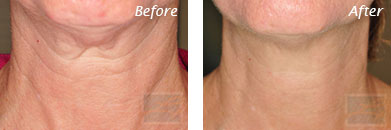 Neck, Abdomen & Chest - Before and After Case 29