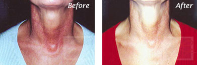Neck, Abdomen & Chest - Before and After Case 31