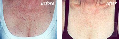 Neck, Abdomen & Chest - Before and After Case 33