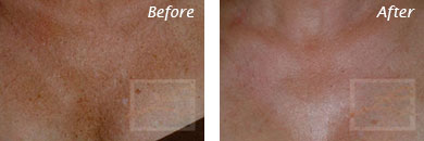 Neck, Abdomen & Chest - Before and After Case 34