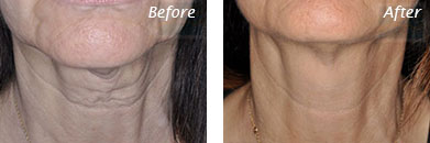 Neck, Abdomen & Chest - Before and After Case 37