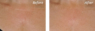 Neck, Abdomen & Chest - Before and After Case 39