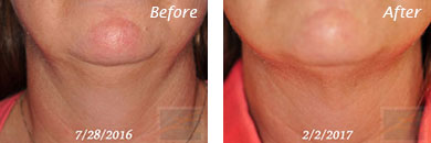Neck, Abdomen & Chest - Before and After Case 11