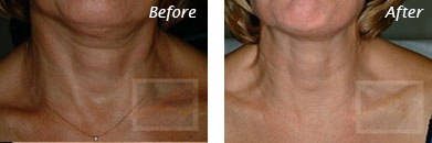 Neck, Abdomen & Chest - Before and After Case 41