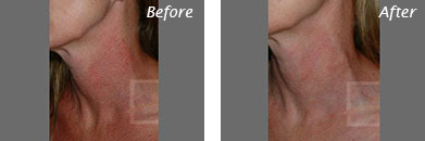 Neck, Abdomen & Chest - Before and After Case 47