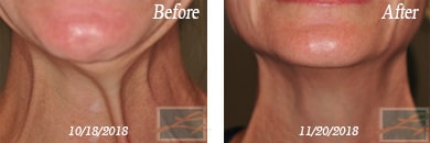 Botox - Before after gallery image 40