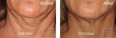 Neck, Abdomen & Chest - Before and After Case 13