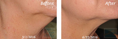 Neck, Abdomen & Chest - Before and After Case 14