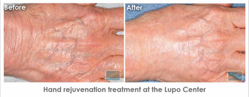 Dermatology Promotions New Orleans - Hand Rejuvenation