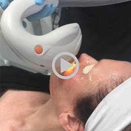Intense Pulsed Light (IPL) Treatment