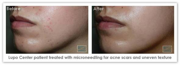 Dr Lupo Microneedling Before and After Patient