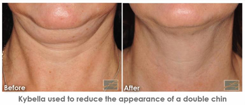 Dermatology Promotions New Orleans - Reduce Double Chin
