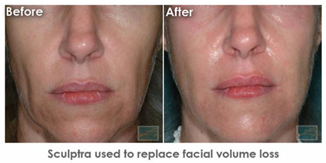 Dermatology Promotions New Orleans - Sculptra Used to Replace