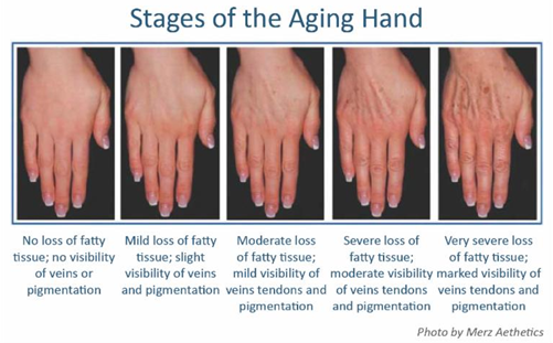 Dermatology Promotions New Orleans - Stages of Aging Hands
