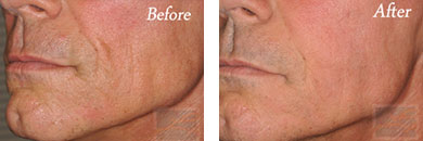 Facial Reshaping - Before and After Case 1