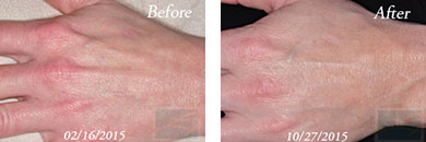 Hands - Before and After Case 4