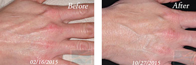 Hands - Before and After Case 5