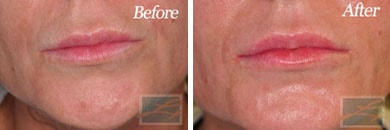 Lips - Before and After Case 22