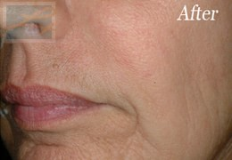Dermatologist New Orleans - Restylane, After