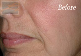 Dermatologist New Orleans - Restylane, Before