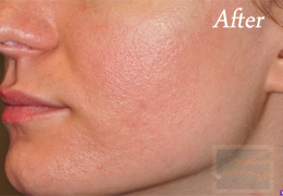 Advanced Skin Care New Orleans - Case 7, After